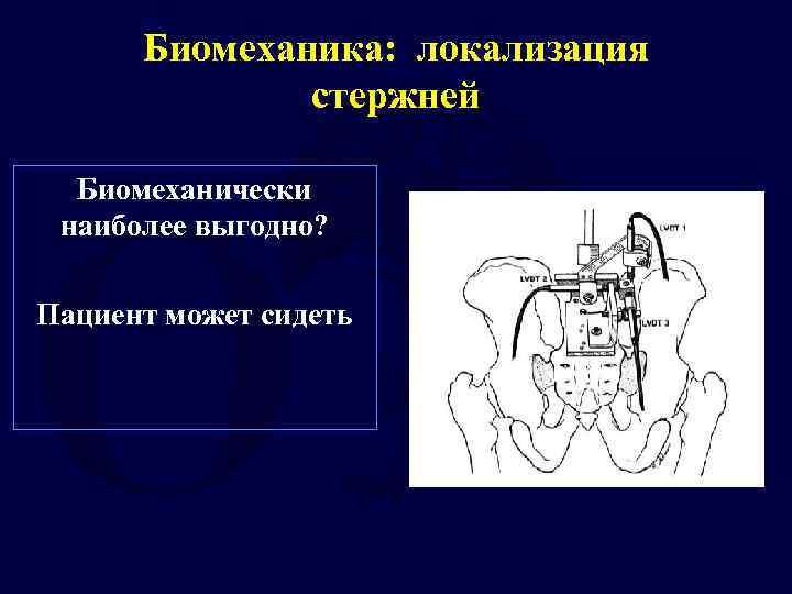 Биомеханика: локализация стержней Биомеханически наиболее выгодно? Пациент может сидеть