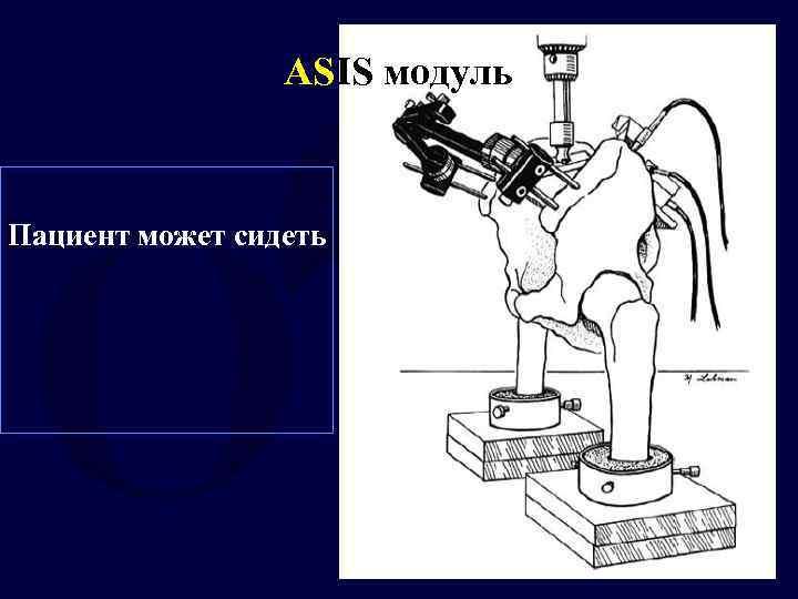 ASIS модуль Пациент может сидеть