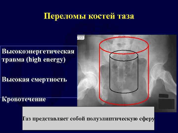 Переломы костей таза Высокоэнергетическая травма (high energy) Высокая смертность Кровотечение Таз представляет собой полуэлиптическую