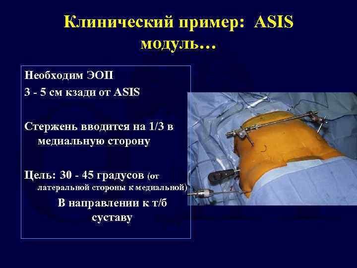 Клинический пример: ASIS модуль… Необходим ЭОП 3 - 5 cм кзади от ASIS Стержень