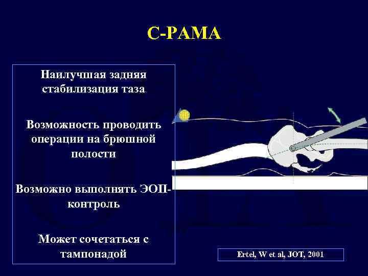 С-РАМА Наилучшая задняя стабилизация таза Возможность проводить операции на брюшной полости Возможно выполнять ЭОПконтроль