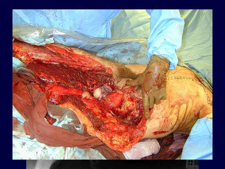 Acute Hemipelvectomy….
