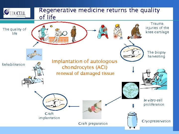 Regenerative medicine returns the quality of life Trauma injuries of the knee cartilage The