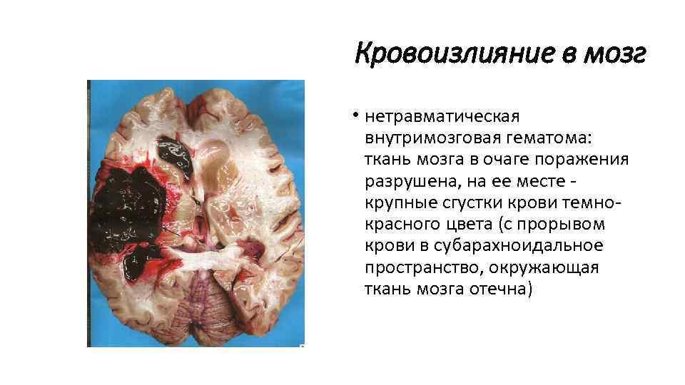 Кровоизлияние в мозг у беременных 92