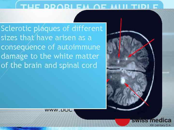 THE PROBLEM OF MULTIPLE SCLEROSIS Sclerotic plaques of different sizes that have arisen as