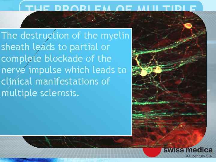 THE PROBLEM OF MULTIPLE SCLEROSIS The destruction of the myelin sheath leads to partial