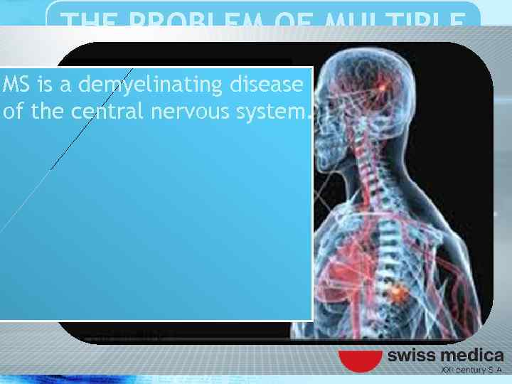 THE PROBLEM OF MULTIPLE SCLEROSIS MS is a demyelinating disease of the central nervous