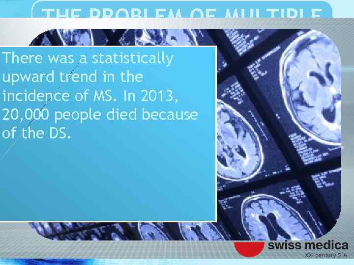 THE PROBLEM OF MULTIPLE SCLEROSIS There was a statistically upward trend in the incidence