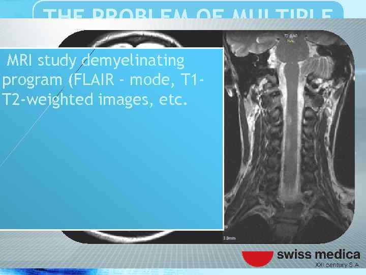THE PROBLEM OF MULTIPLE SCLEROSIS MRI study demyelinating program (FLAIR - mode, T 1