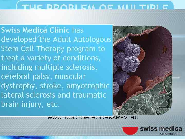 THE PROBLEM OF MULTIPLE SCLEROSIS Swiss Medica Clinic has developed the Adult Autologous Stem
