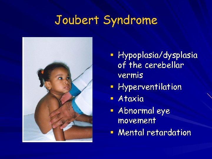 Joubert Syndrome Hypoplasia/dysplasia of the cerebellar vermis Hyperventilation Ataxia Abnormal eye movement Mental retardation