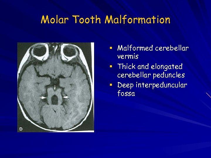 Molar Tooth Malformation Malformed cerebellar vermis Thick and elongated cerebellar peduncles Deep interpeduncular fossa