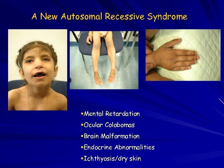 A New Autosomal Recessive Syndrome Mental Retardation Ocular Colobomas Brain Malformation Endocrine Abnormalities Ichthyosis/dry
