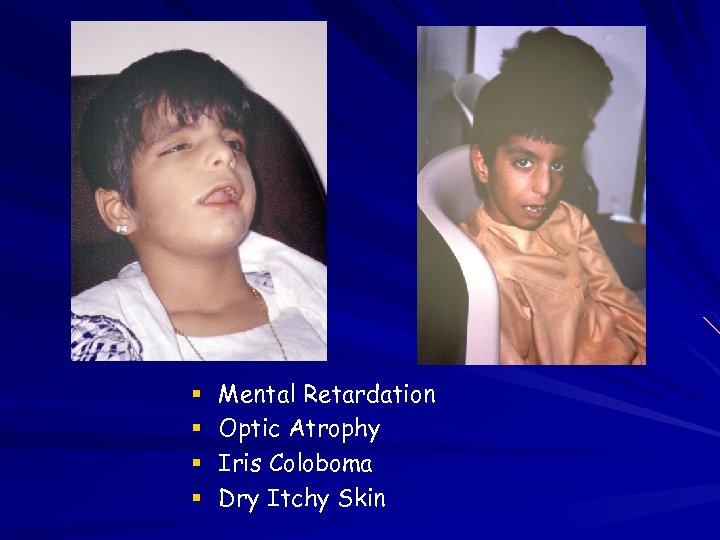 Mental Retardation Optic Atrophy Iris Coloboma Dry Itchy Skin