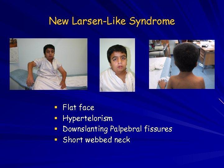 New Larsen-Like Syndrome Flat face Hypertelorism Downslanting Palpebral fissures Short webbed neck