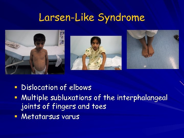Larsen-Like Syndrome Dislocation of elbows Multiple subluxations of the interphalangeal joints of fingers and