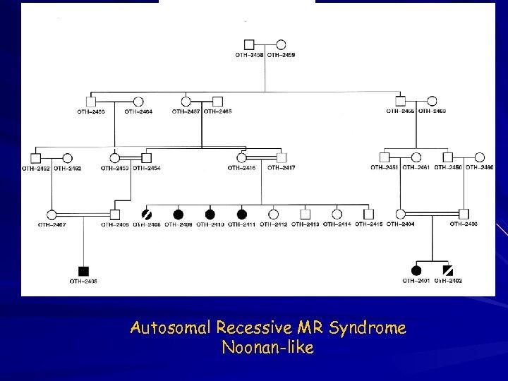 4 1 2 5 Autosomal Recessive MR Syndrome Noonan-like