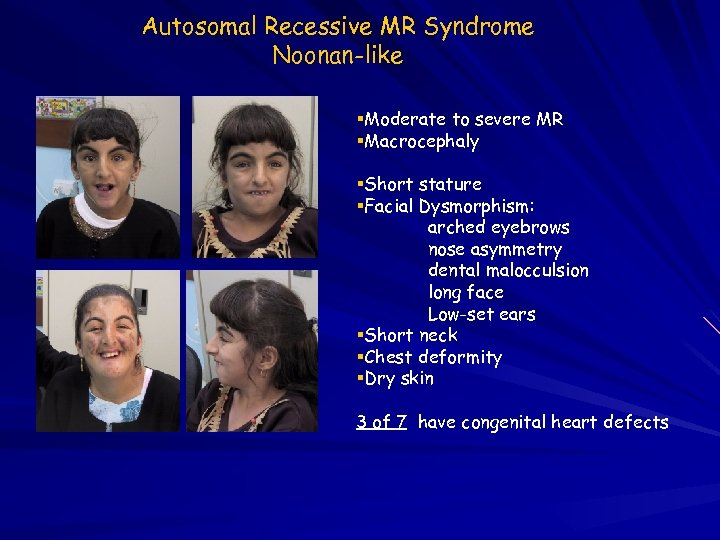 Autosomal Recessive MR Syndrome Noonan-like Moderate to severe MR Macrocephaly Short stature Facial Dysmorphism: