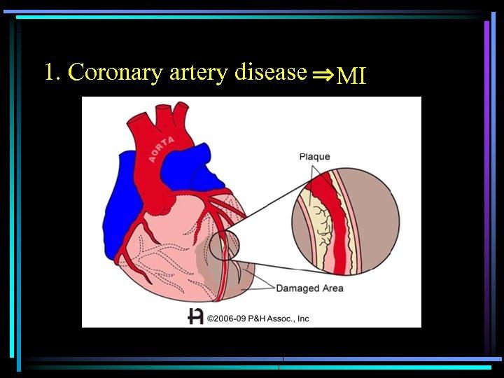 1. Coronary artery disease         ⇒MI