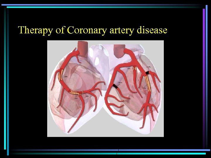 Therapy of Coronary artery disease
