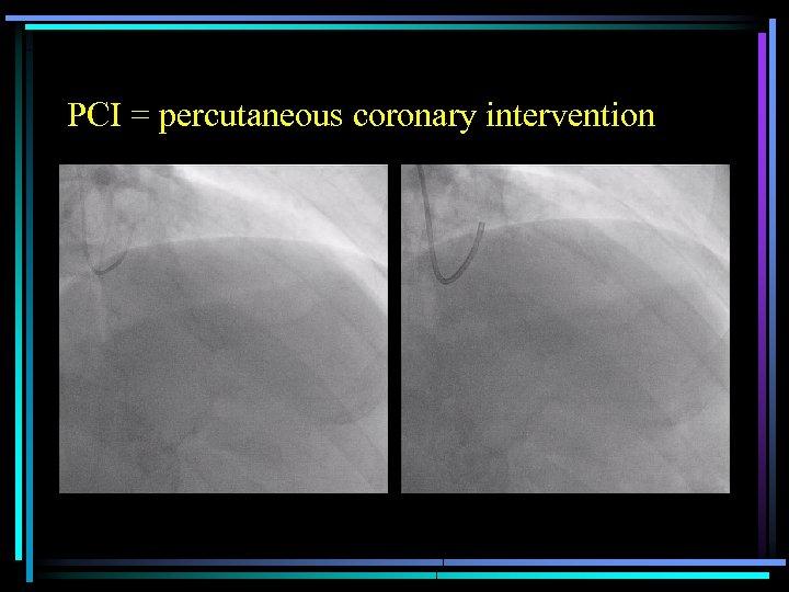 PCI = percutaneous coronary intervention