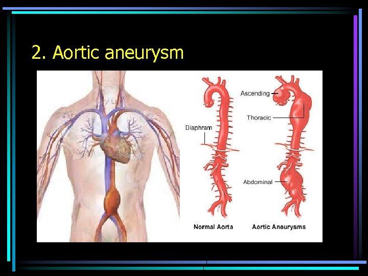 2. Aortic aneurysm