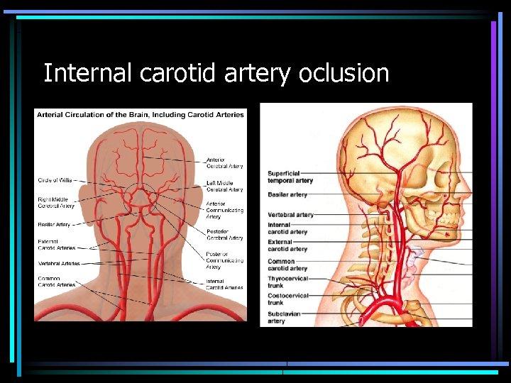 Internal carotid artery oclusion