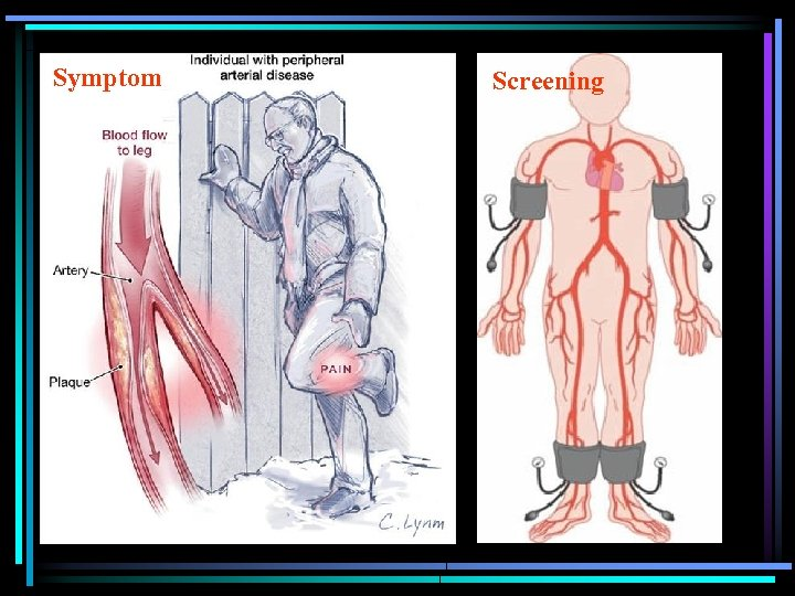 Symptom Screening