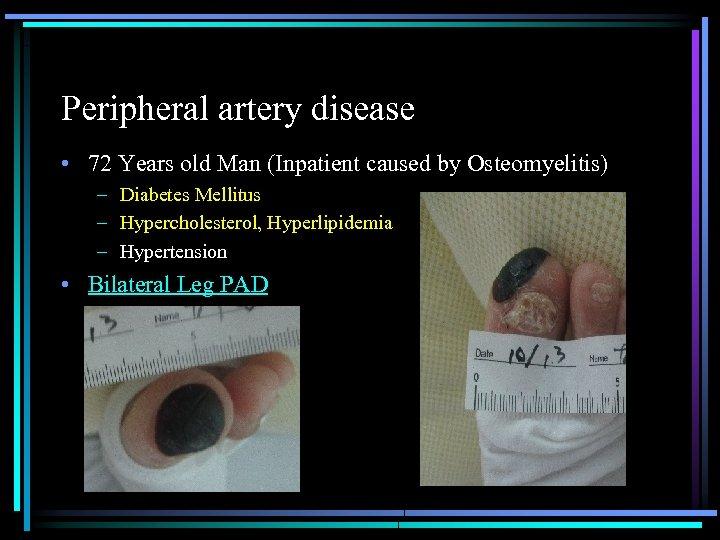 Peripheral artery disease • 72 Years old Man (Inpatient caused by Osteomyelitis) – Diabetes