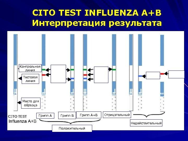 CITO TEST INFLUENZA A+B Интерпретация результата Контрольная линия Тестовая линия Место для образца Грипп