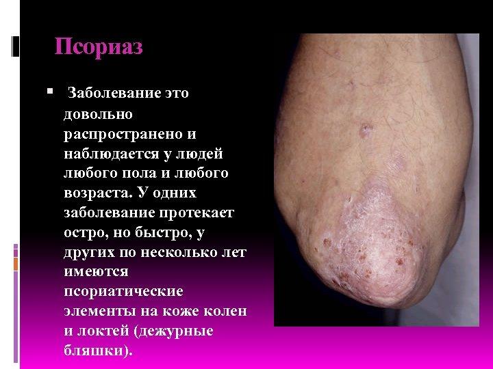 Псориаз Заболевание это довольно распространено и наблюдается у людей любого пола и любого возраста.