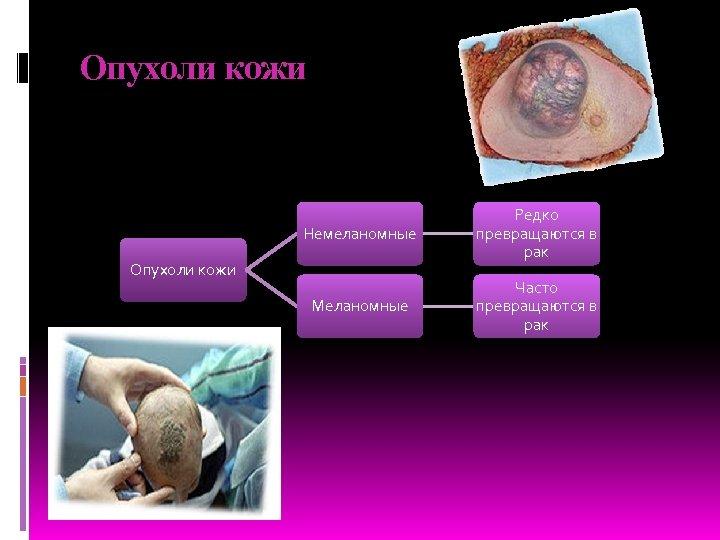 Опухоли кожи Немеланомные Редко превращаются в рак Меланомные Часто превращаются в рак Опухоли кожи