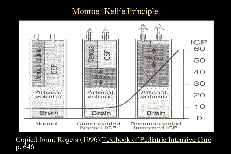 Monroe- Kellie Principle Copied from: Rogers (1996) Textbook of Pediatric Intensive Care p. 646