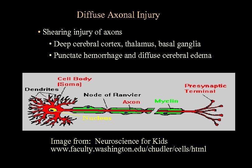 Diffuse Axonal Injury • Shearing injury of axons • Deep cerebral cortex, thalamus, basal