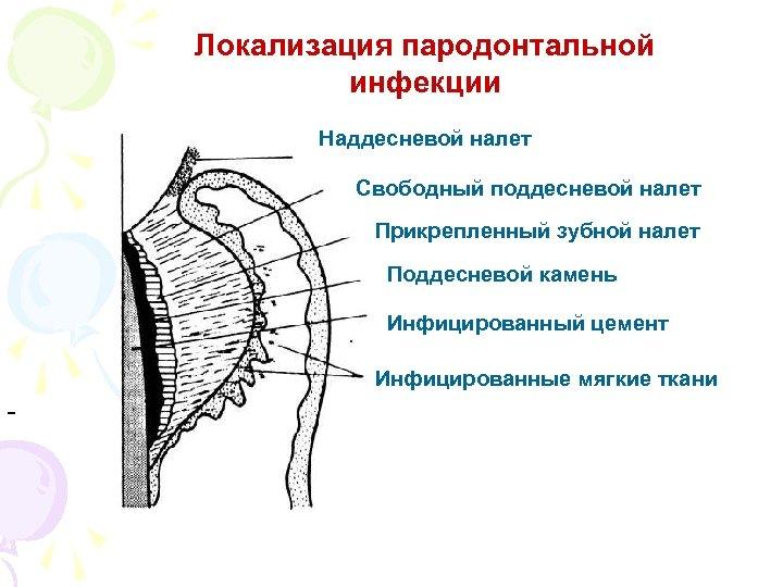 Локализация пародонтальной инфекции Наддесневой налет Свободный поддесневой налет Прикрепленный зубной налет Поддесневой камень Инфицированный