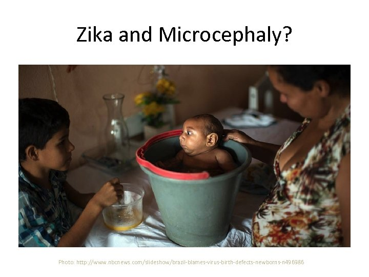 Zika and Microcephaly? Photo: http: //www. nbcnews. com/slideshow/brazil-blames-virus-birth-defects-newborns-n 496986