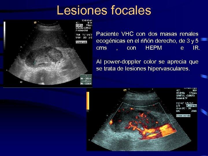 Lesiones focales Paciente VHC con dos masas renales ecogénicas en el riñón derecho, de