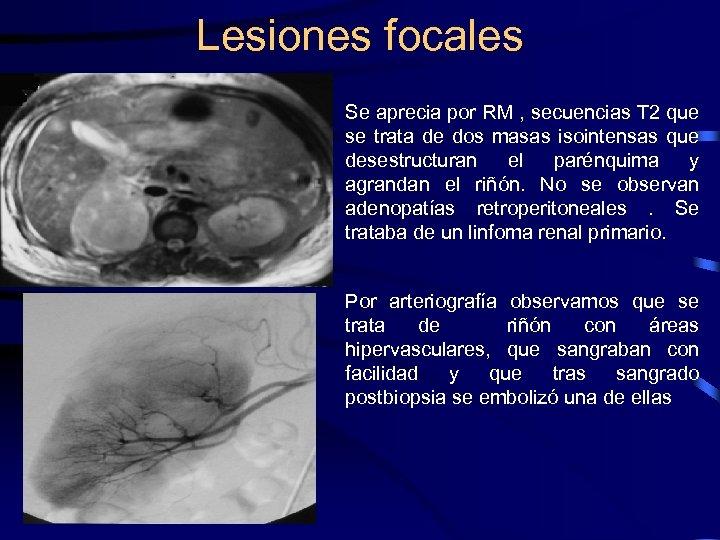 Lesiones focales Se aprecia por RM , secuencias T 2 que se trata de