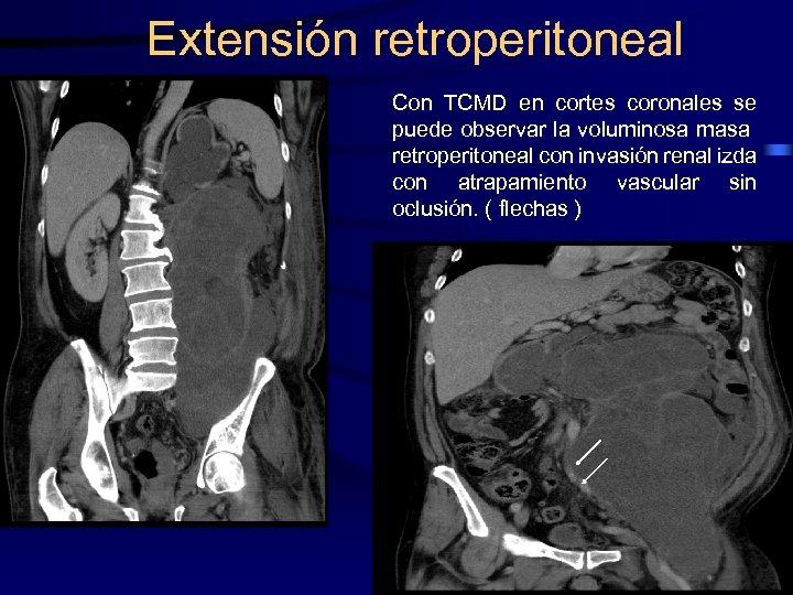 Extensión retroperitoneal Con TCMD en cortes coronales se puede observar la voluminosa masa retroperitoneal