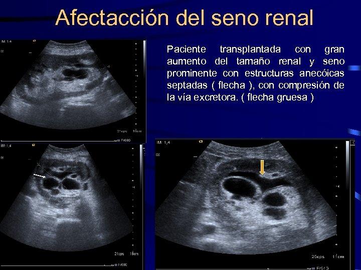 Afectacción del seno renal Paciente transplantada con gran aumento del tamaño renal y seno