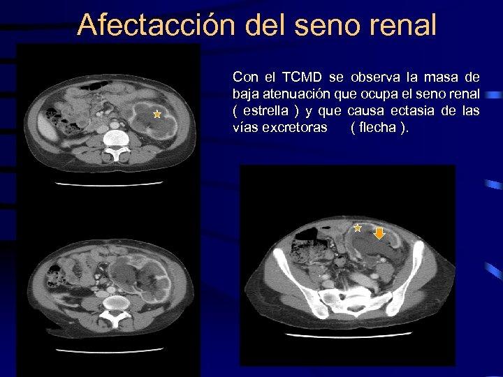 Afectacción del seno renal Con el TCMD se observa la masa de baja atenuación