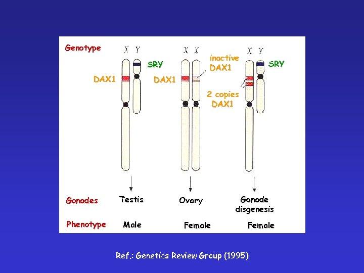 Genotype inactive DAX 1 SRY DAX 1 2 copies DAX 1 Gonades Phenotype Testis