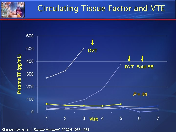 Circulating Tissue Factor and VTE P l a s m a T F (p