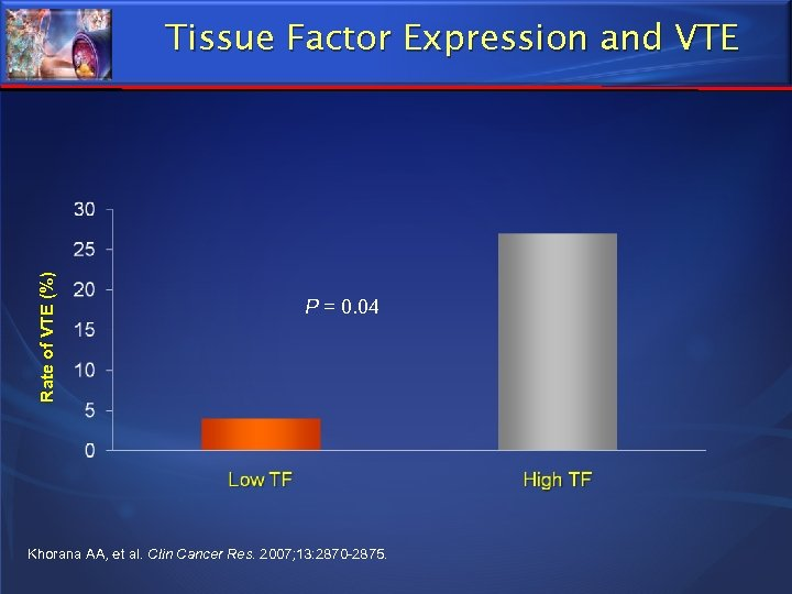 Rate of VTE (%) Tissue Factor Expression and VTE P = 0. 04 Khorana