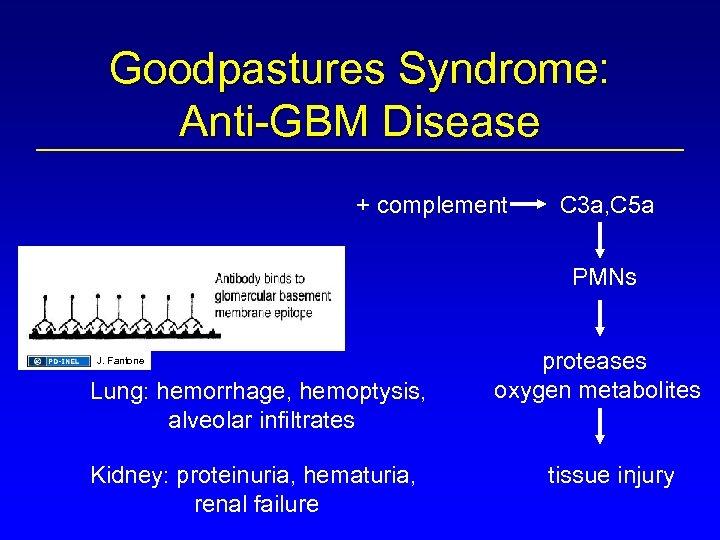 Goodpastures Syndrome: Anti-GBM Disease + complement C 3 a, C 5 a PMNs J.