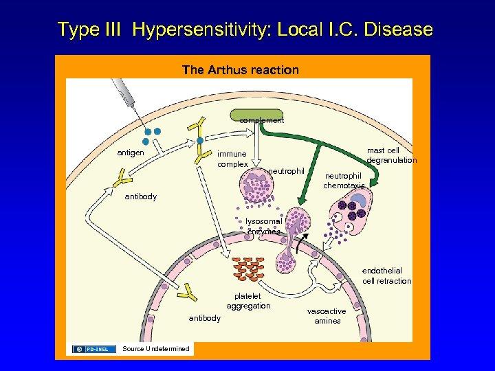 Type III Hypersensitivity: Local I. C. Disease The Arthus reaction complement antigen immune complex