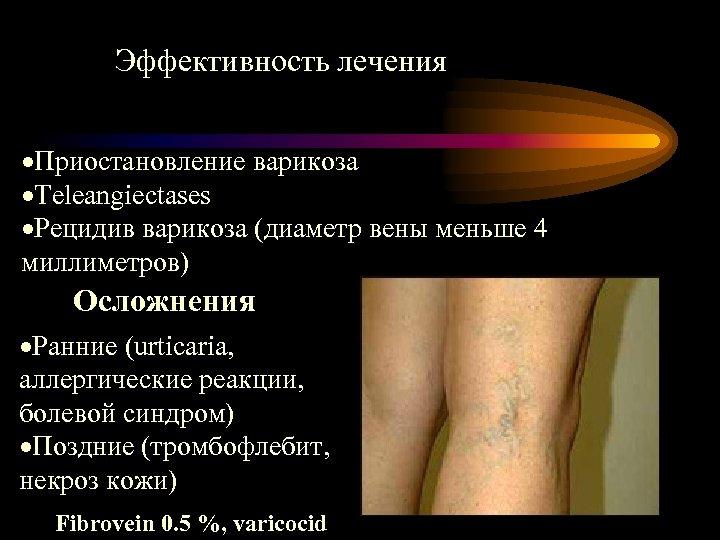 Эффективность лечения ·Приостановление варикоза ·Teleangiectases ·Рецидив варикоза (диаметр вены меньше 4 миллиметров) Осложнения ·Ранние