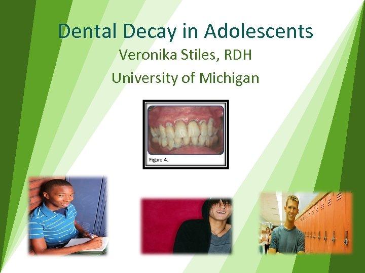 Dental Decay in Adolescents Veronika Stiles, RDH University of Michigan