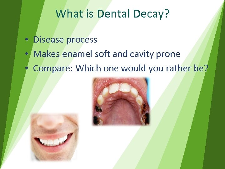 What is Dental Decay? • • • Disease process Makes enamel soft and cavity