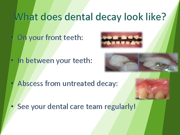 What does dental decay look like? • On your front teeth: • In between